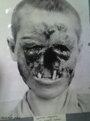 последняя стадия сифилиса фото